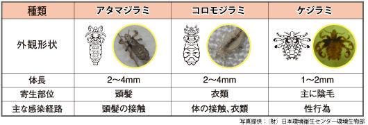 アースシラミとりシャンプー  シラミの種類 [第2類医薬品、害虫駆除、対策、シラミ、シャンプー]